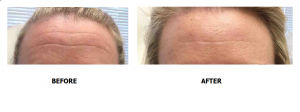 Dr. Isaac treats forehead wrinkles with BOTOX® Cosmetic in her Washington, D.C. practice.