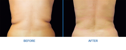 CoolSculpting back before-and-after