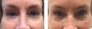 Female patient undergoes Lutronix Infini RF around the eyes. Post 3 sessions.