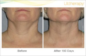 Ultherapy Turkey Neck Washington DC