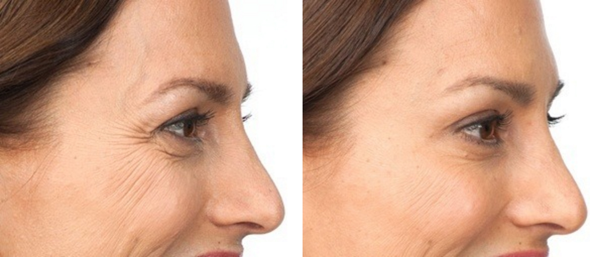 Real Botox Patient Before and After Treatment
