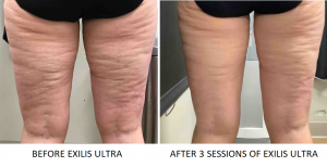 This patient wanted to improve the appearance of cellulite on her thighs. She had 3 sessions of Exilis Ultra, and the results are incredible!