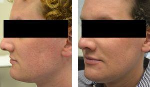 Male patient undergoes laser treatment in Washington, DC, for smoother skin texture.