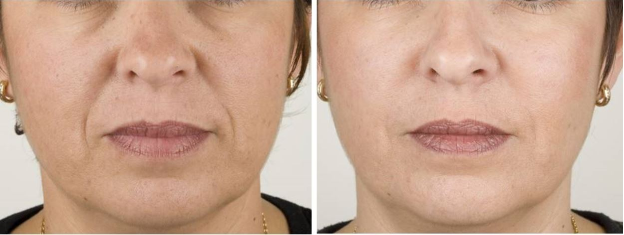 Real RHA Filler Patient Before and After