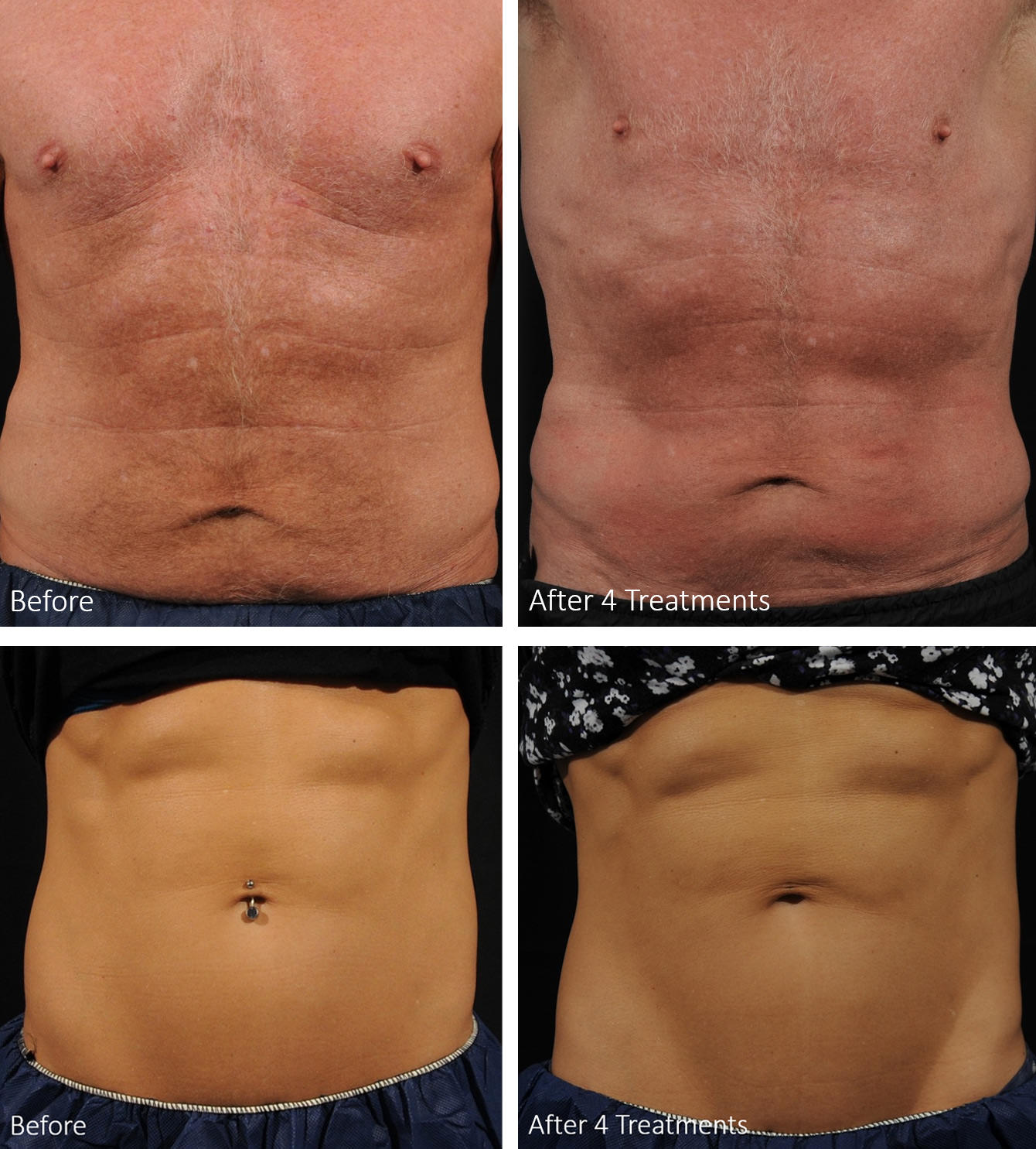 Male and female patients before and after 4 treatment photos