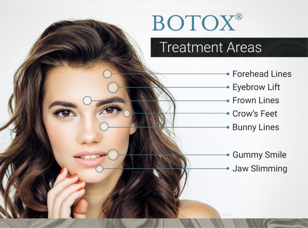 BOTOX treatment area graphic