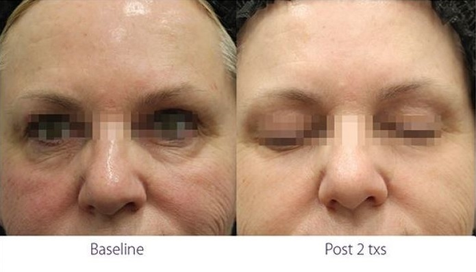 Opus Plasma RF under eye treatment before and after