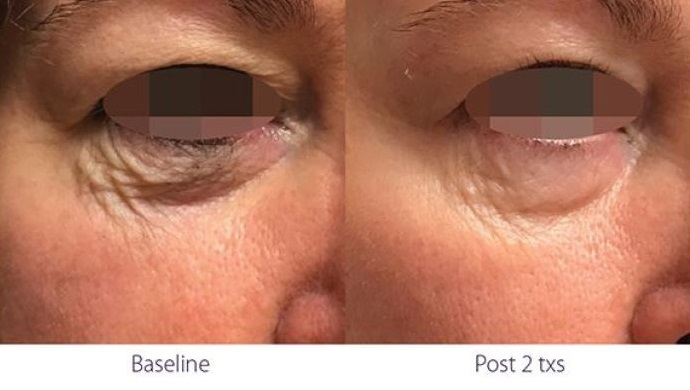 Opus Plasma RF treatment under eyes before and after