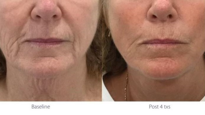 Opus Plasma RF for lip lines and neck before afnd after
